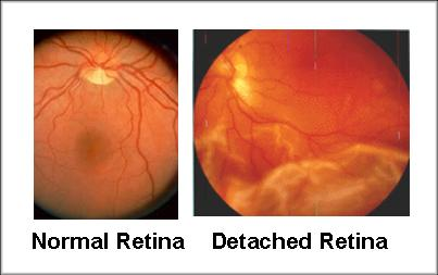 retinaldetachmentsmall